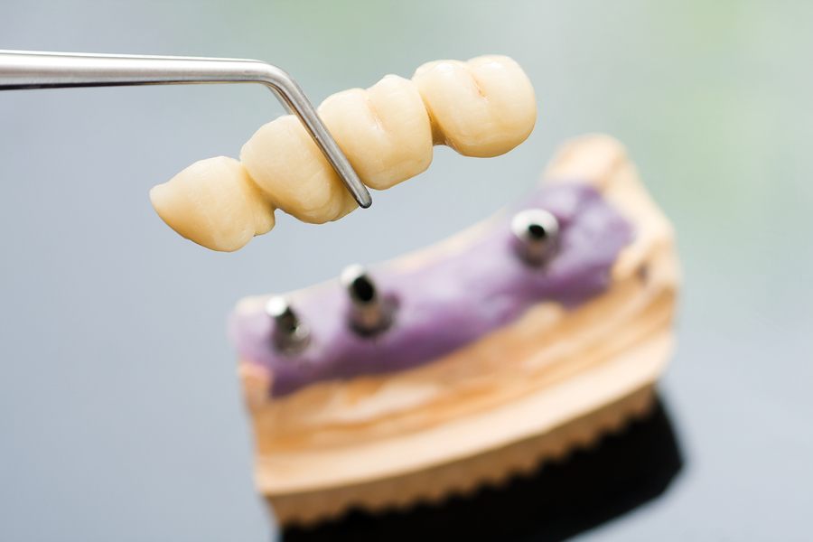 Picture of fixed bridge to fix gap in teeth