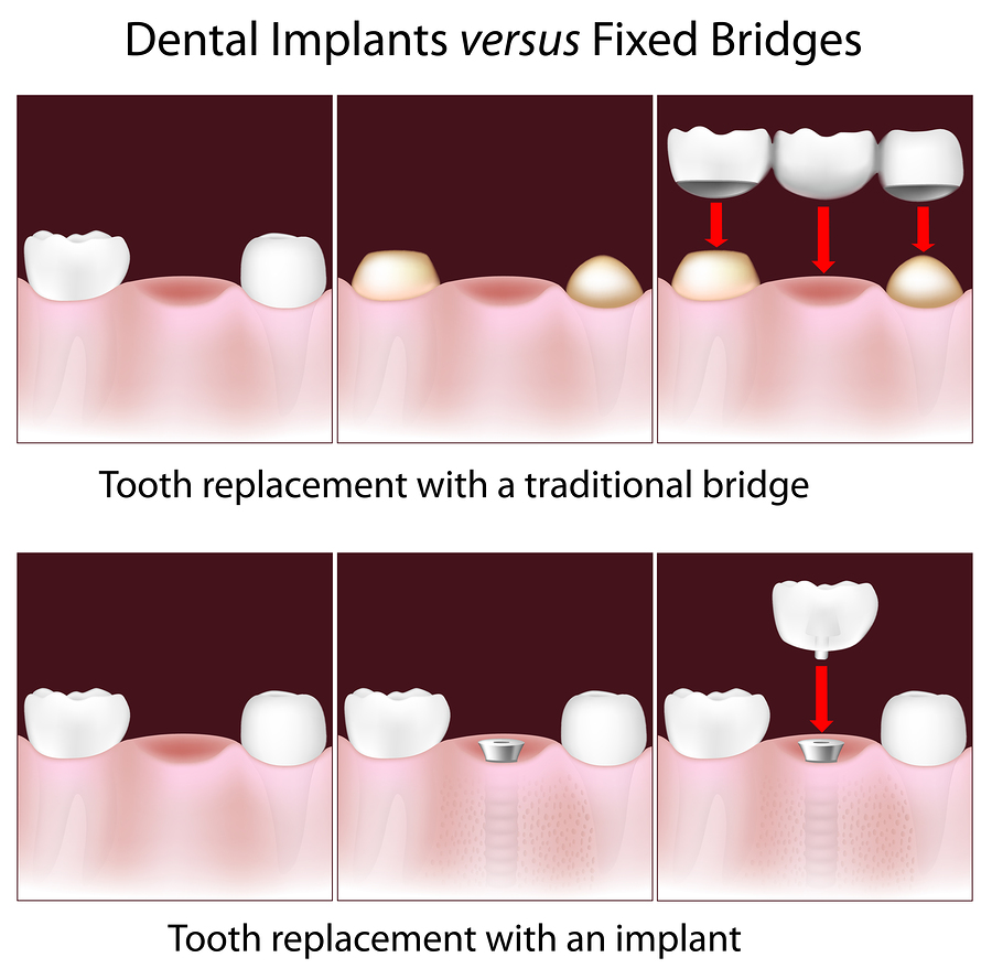 Picture of fixed bridges compared to dental implants