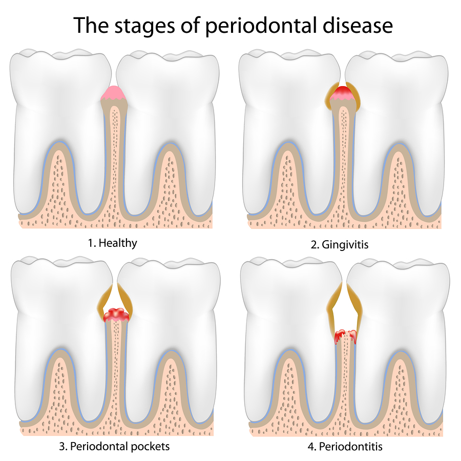 Picture of periodontal disease stages for diagnosis