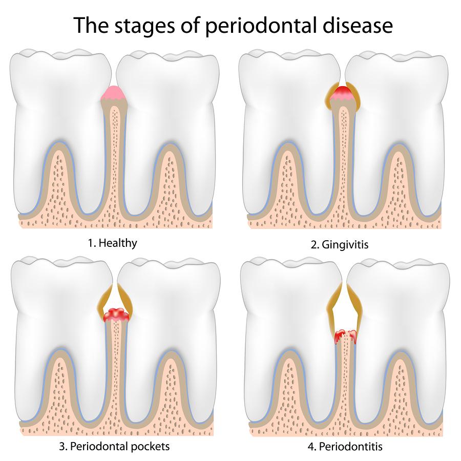 Periodontal or gum disease diagnosis | Dentist Las Vegas 702-368-3627