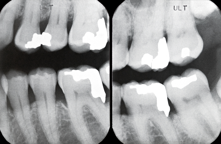 Picture of Periodontal disease x-ray