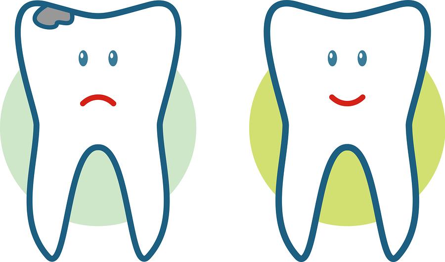 Picture of broken teeth fixed