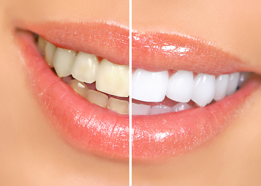 Picture of yellow teeth whitened
