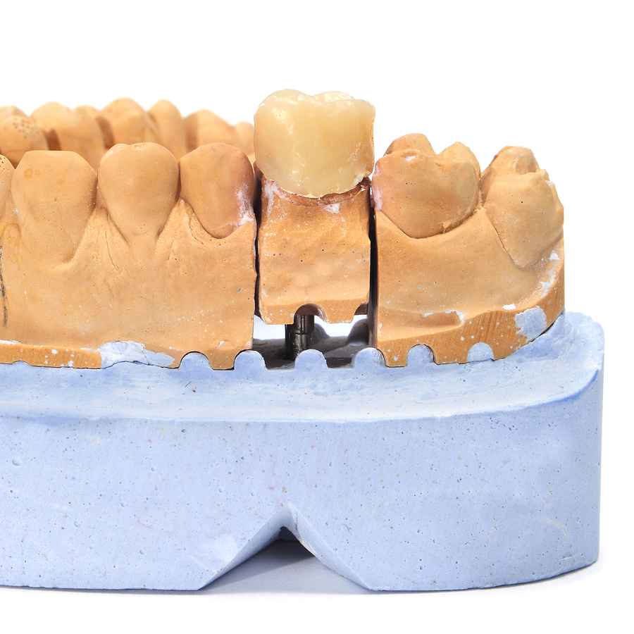 Picture of dental mold for porcelain crown