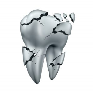 Broken tooth dental symbol and toothache dentistry concept as a single cracked damaged molar