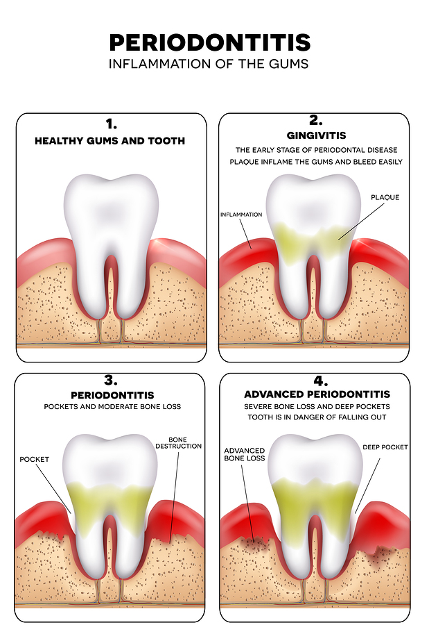 Periodontitis inflammation of the gums detailed illustration. Healthy tooth Gingivitis and at the end advanced Periodontitis