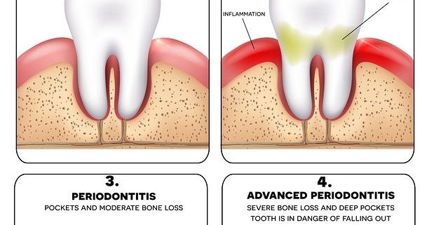periodontitis what is gum disease