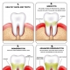 periodontitis what is gum disease
