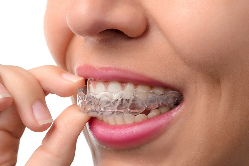 las vegas orthodontist metal braces alternative