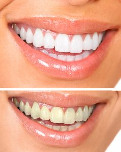 Two images of woman's mouth - white teeth and yellow teeth