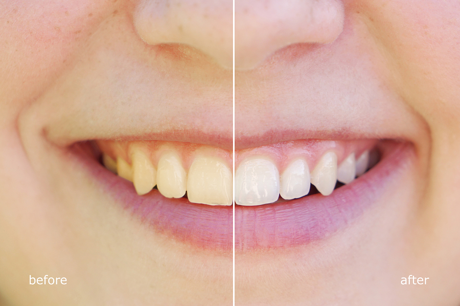 teeth whitening before and after concept. comparision between yellow and white teeth