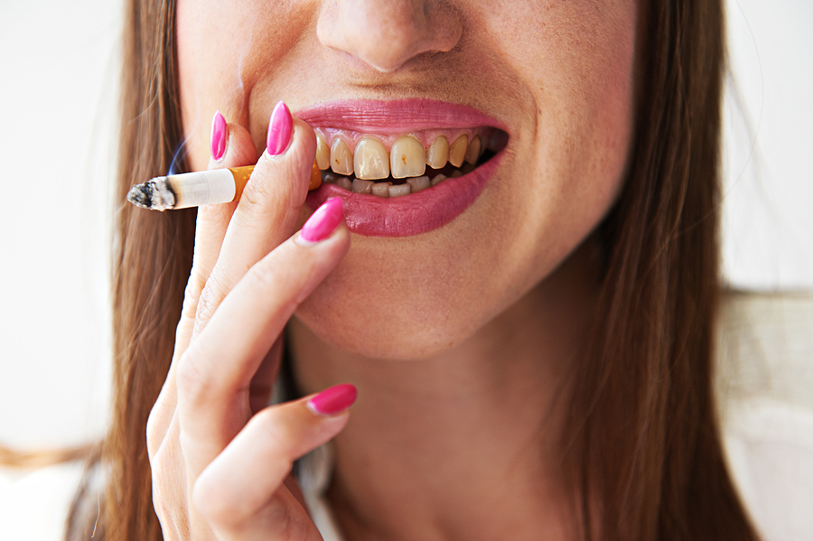 smiling woman with yellow dirty teeth holding cigarette