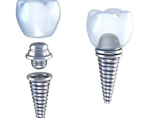 Dental implant 3d crown demonstrating parts of dental implant
