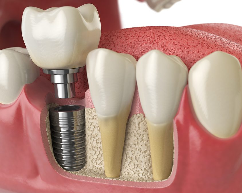 Anatomy of healthy teeth and tooth dental implant in human dentura
