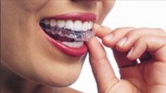 Las Vegas Invisalign dentist