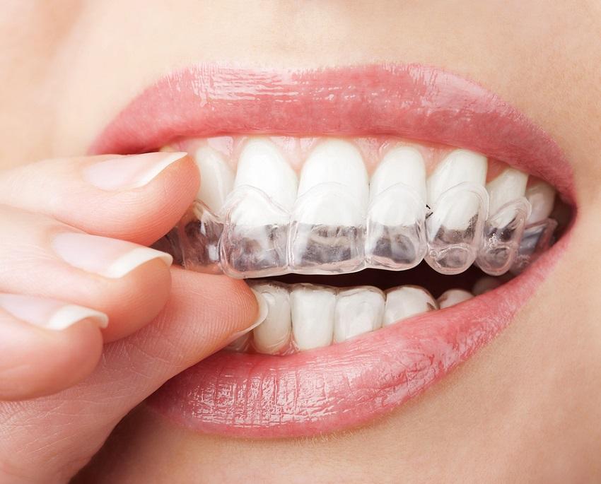 Las Vegas invisalign dentist provider