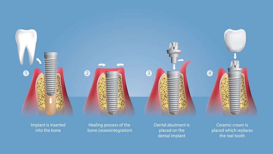 dental implant process chart showing stages of dental implant process