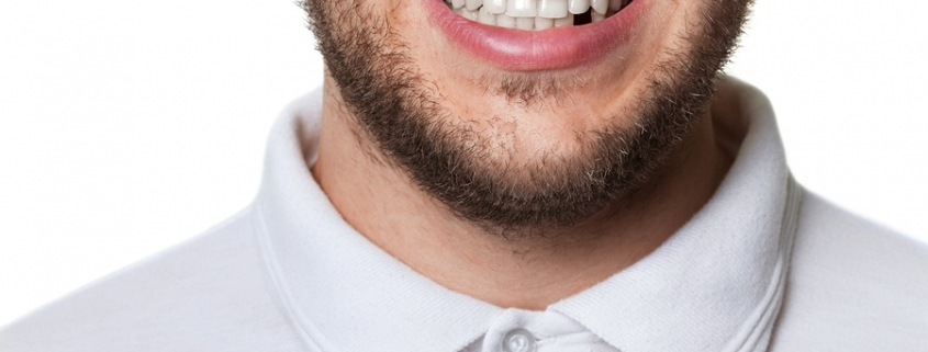 handsome young man with beard missing a front tooth considering dental implants