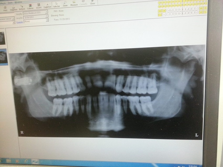 dental x-ray example