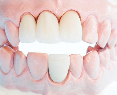fixed bridge for missing teeth