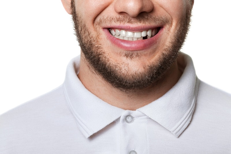 handsome young man with beard missing a front tooth considering dental implants in Las Vega