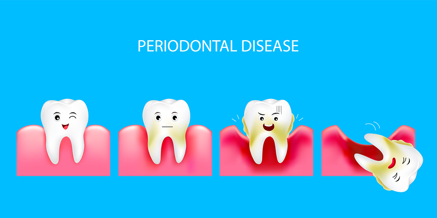 the four stages of periodontal disease leading to tooth loss step 4