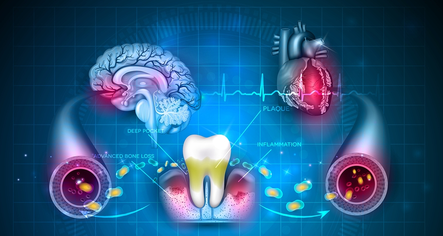 Complications of gum disease Periodontitis. Bacteria from inflamed gums can enter in to the blood stream and affect other organs such as heart and brain.