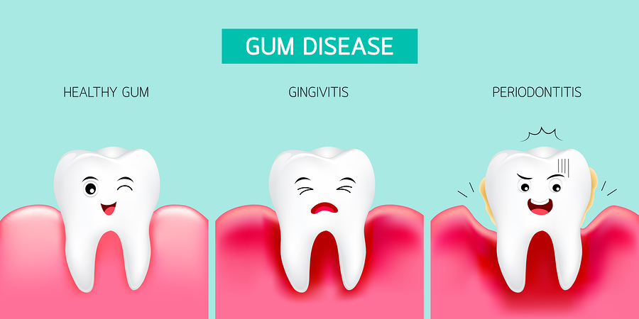 graphic showing the stages of gum disease as teeth - healthy, gingivitis and periodontitis
